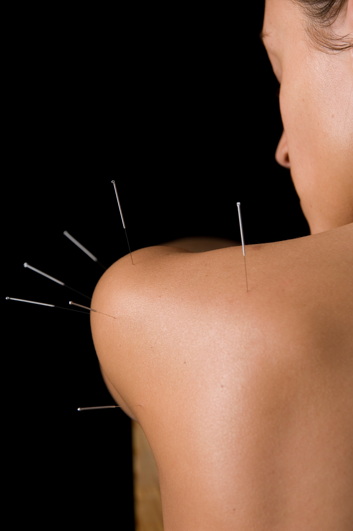 Acupuncture – what is it?