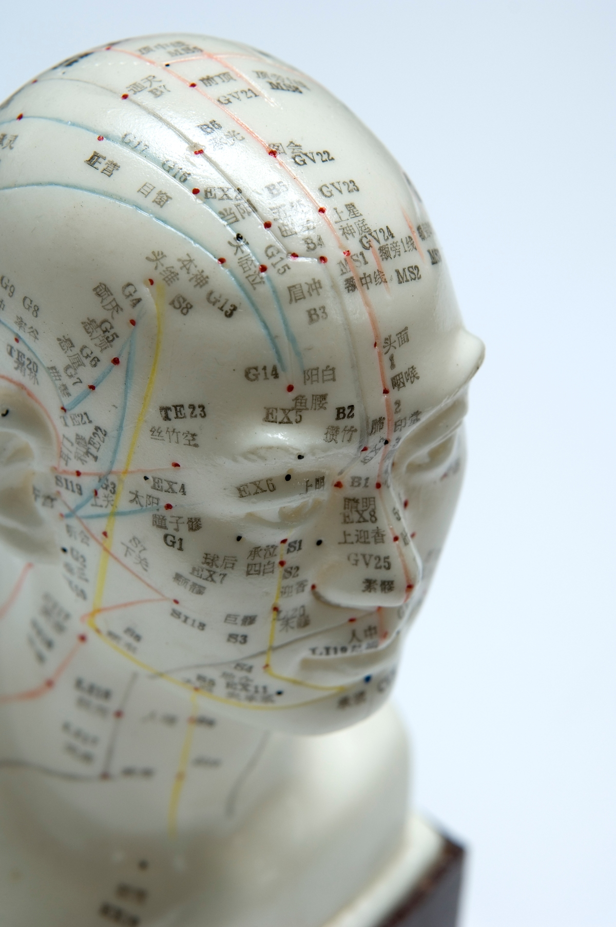 Migraine watch: Keeping up with the most current research for acupuncture