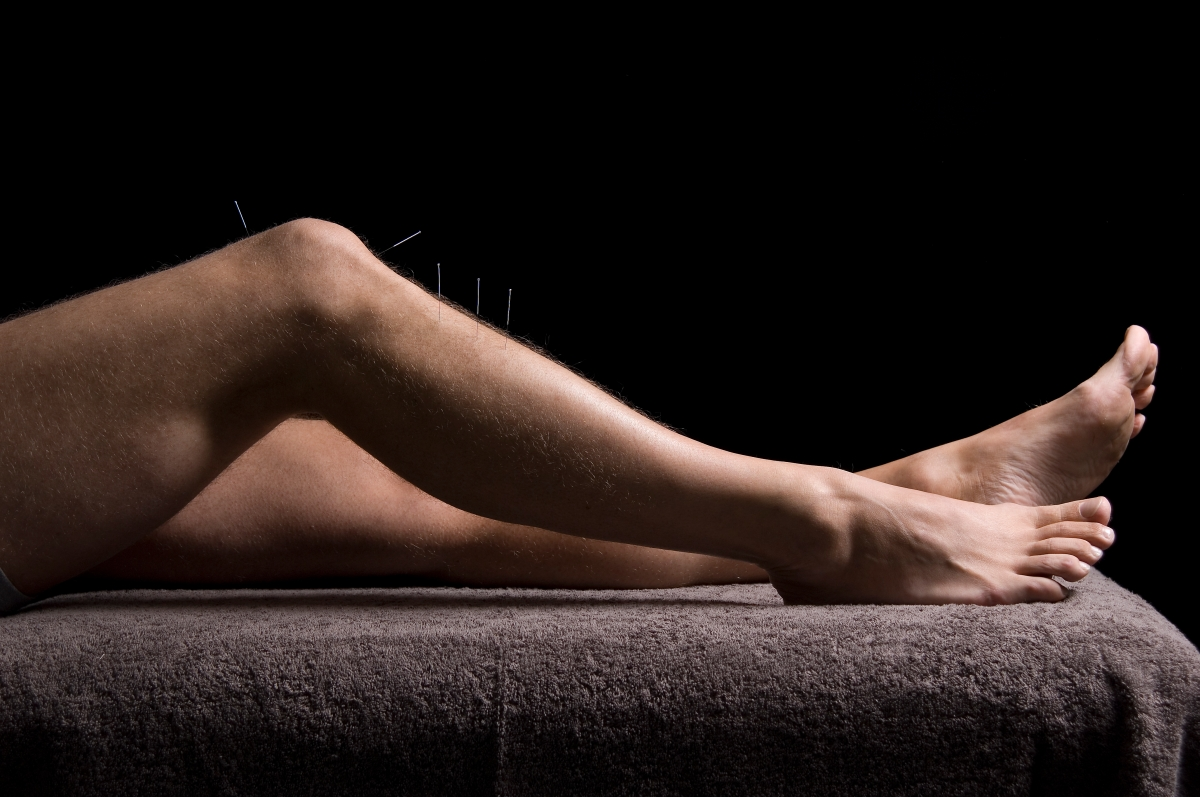 Acupuncture for muscular and joint pain